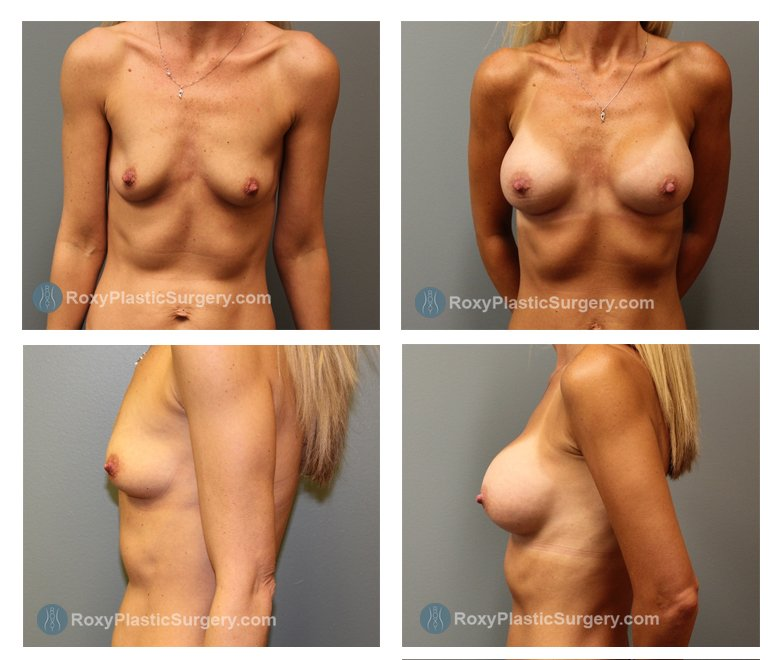 silicone-breast-augmentation-before-after-columbus-oh-100045