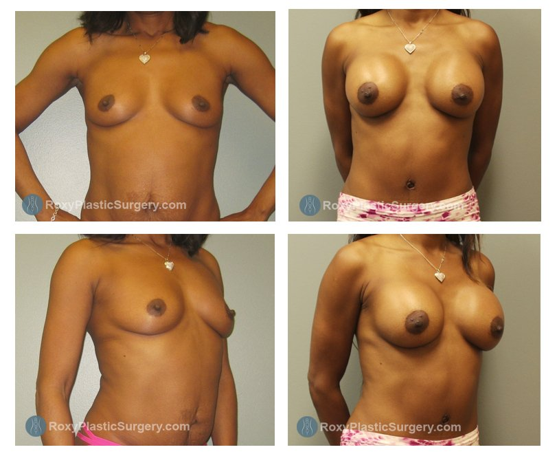 silicone-breast-augmentation-before-after-columbus-oh-100046