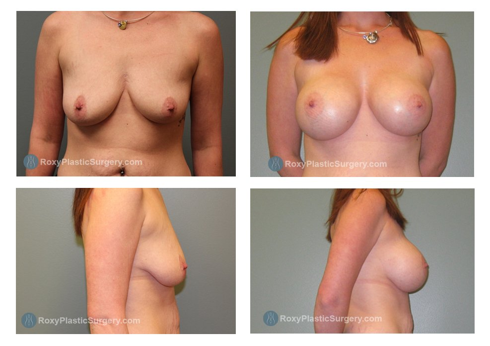 silicone-breast-augmentation-before-after-columbus-oh-100049