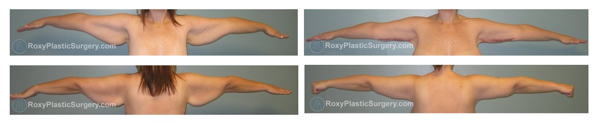 Arm Lift Scar 6 Months : Brachioplasty before and after columbus ohio roxy