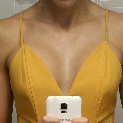 breast augmentation ohio patient selfie