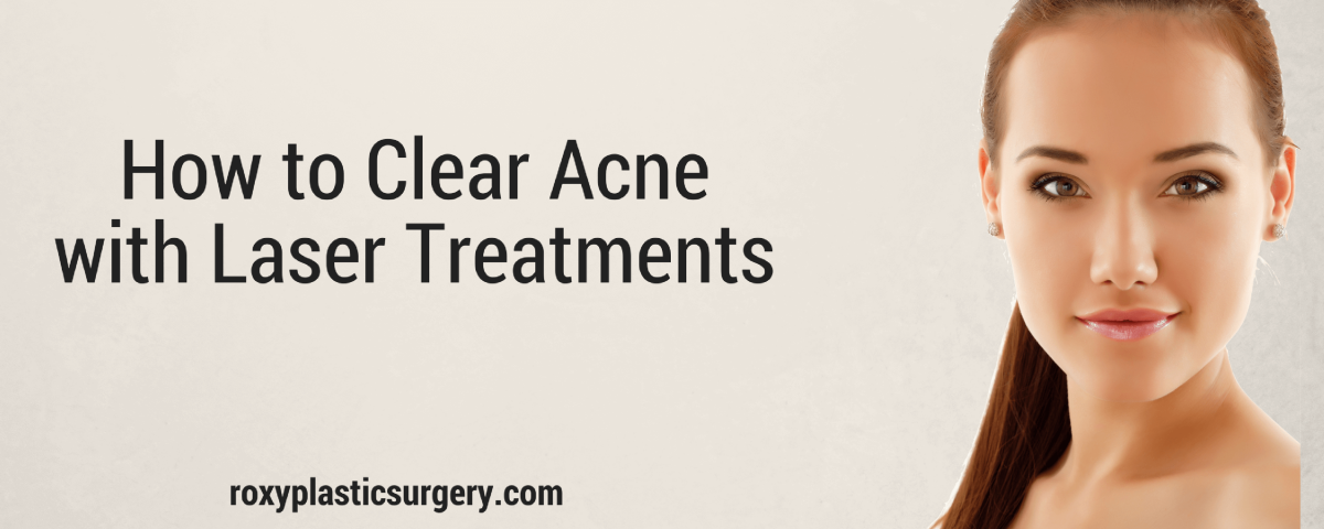 acne laser treatment columbus oh