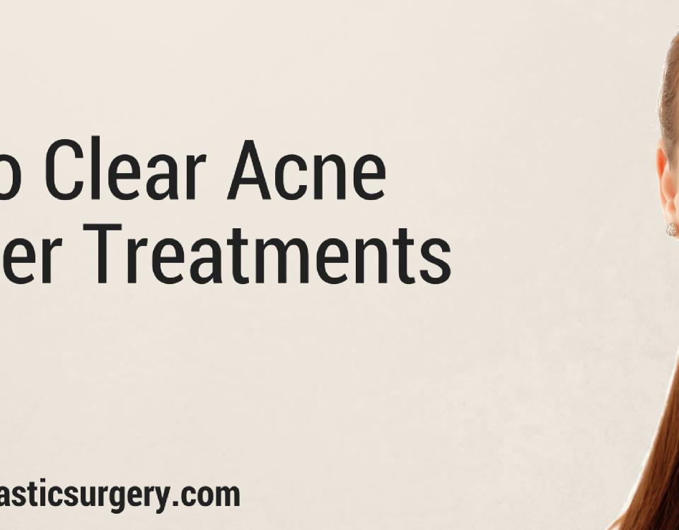 acne laser treatment columbus oh