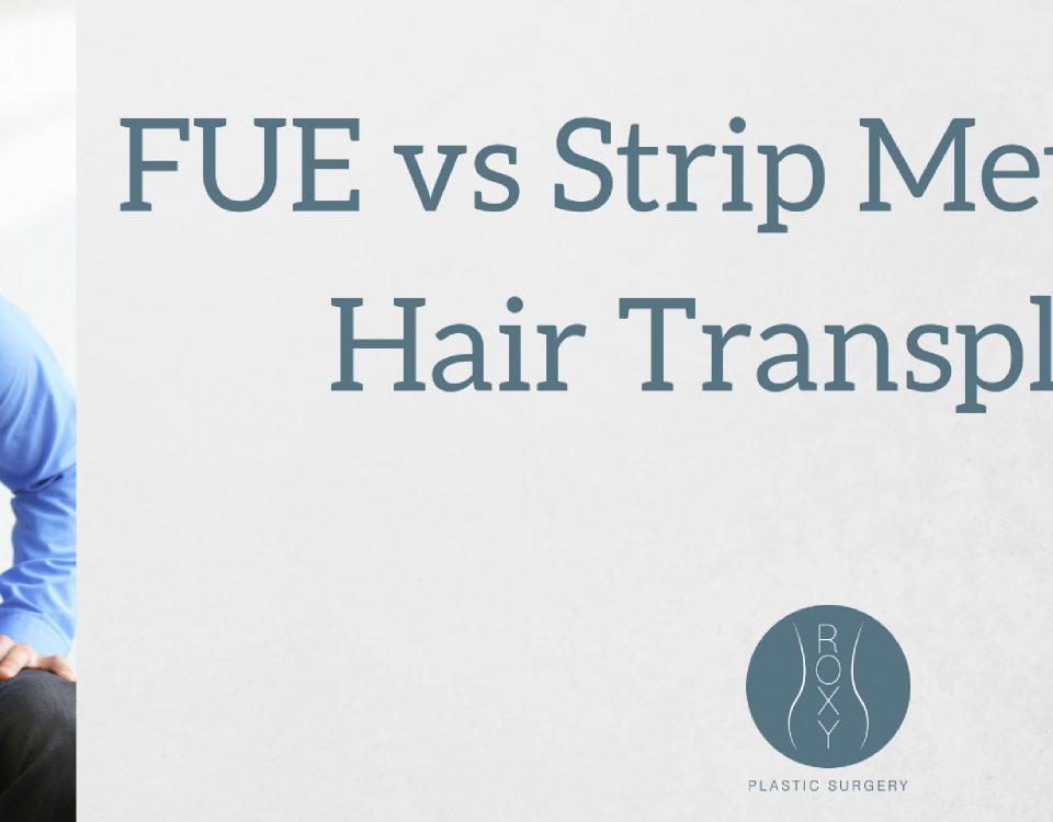 ROXY Plastic Surgery FUE vs Strip Method Hair Transplant