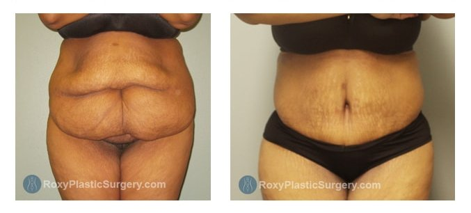 Mommy Makeover ROXY Plastic Surgery
