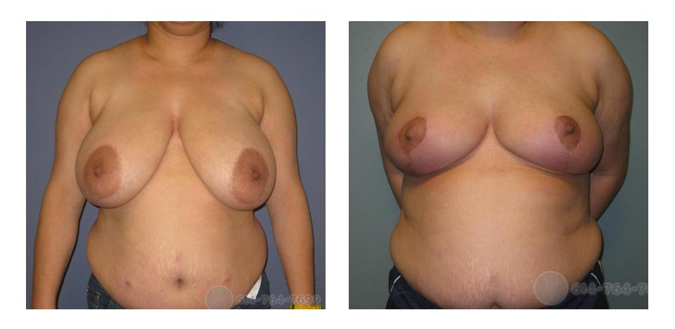 breast reduction Mommy Makeover