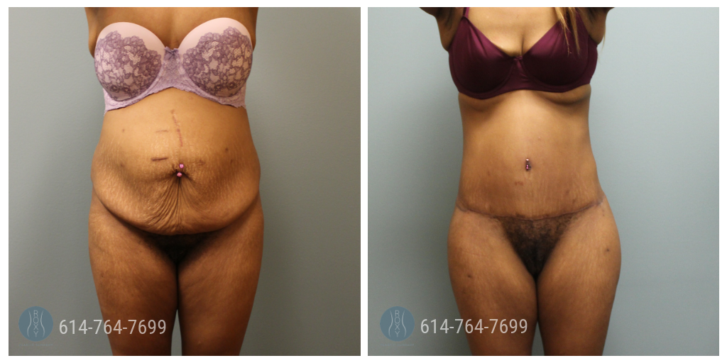 Dr. Grawe Mommy Makeover Ohio
