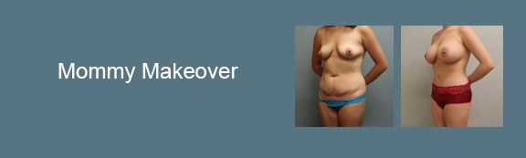 Roxy Plastic Surgery Mommy Makeover Gallery