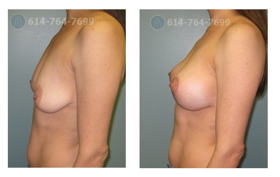Breast Augmentation with a Breast Lift
