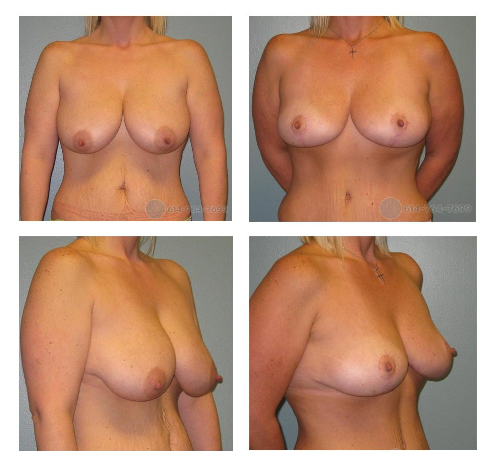 breast lift before and after images
