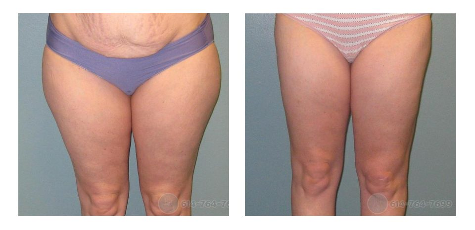 Mommy Makeover Liposuction