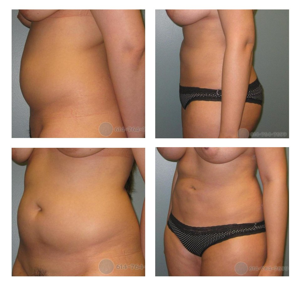 Liposuction in Columbus Ohio with ROXY Plastic Surgery