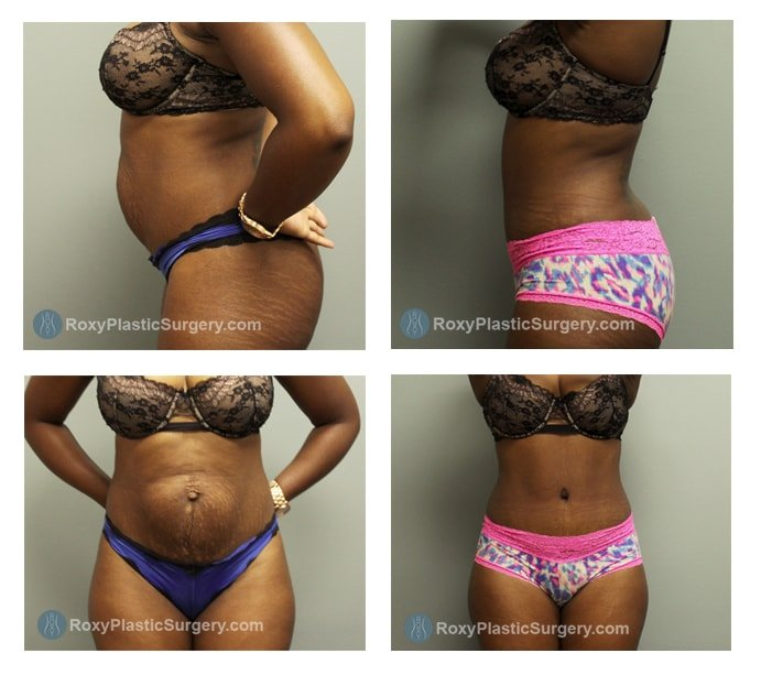 Mommy Makeover Cost Tummy Tuck