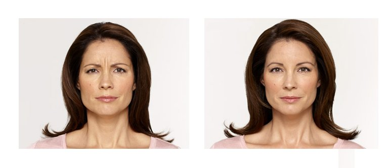 botox columbus ohio before and after
