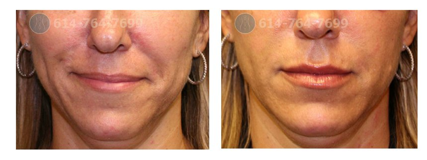 ROXY Plastic Surgery Columbus Ohio Juvederm