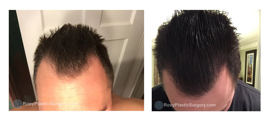 ROXY Plastic Surgery Hair Transplant Columbus Ohio