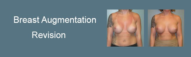 roxy plastic surgery columbus ohio breast augmentation