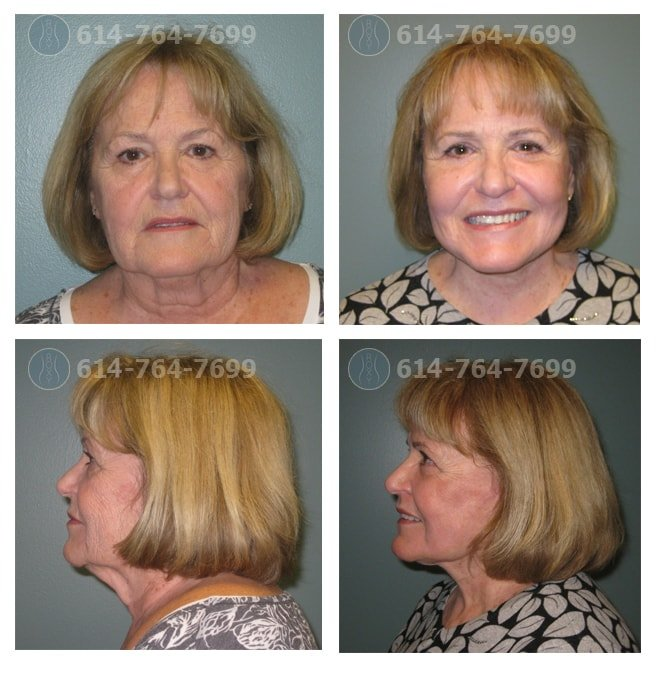 Before and After Photos: Facelift in Columbus Ohio