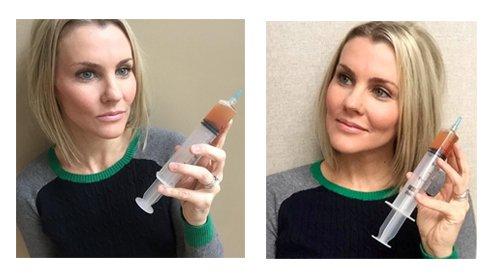 Vampire-Facial-Roxy-Plastic-Surgery-Columbus-OH