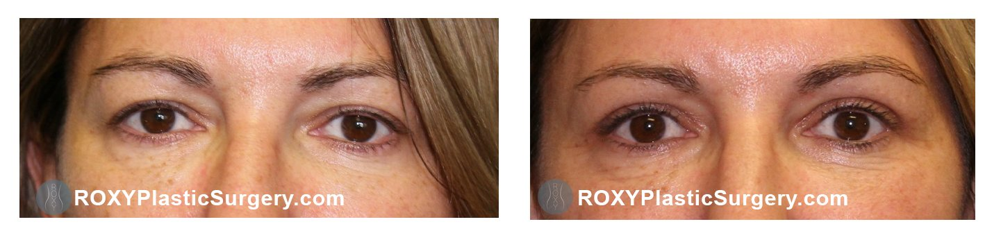eyelid lift before after columbus ohio