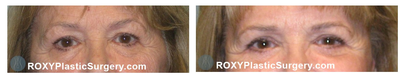eyelid surgery before after columbus ohio