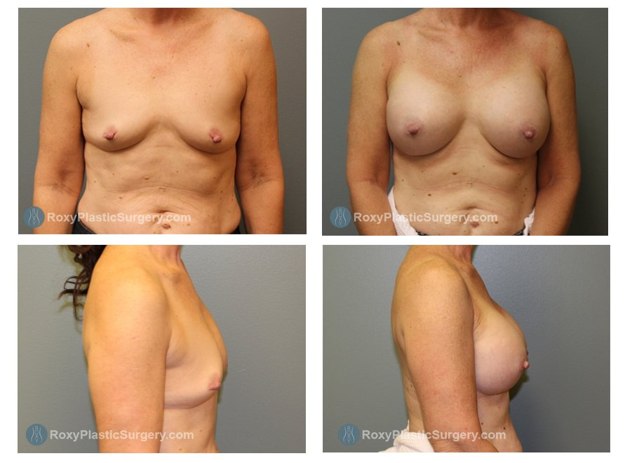 Breast Augmentation Columbus Ohio