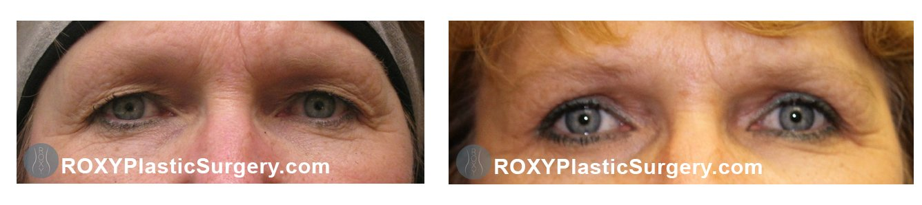 upper eyelid lift before after columbus ohio