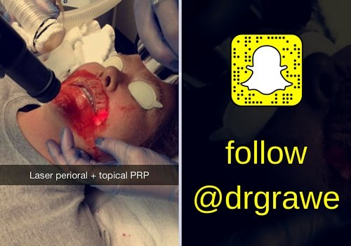 ROXY Plastic Surgery Snapchat PRP
