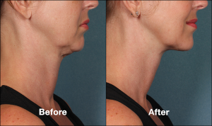 Kybella Injection Before and After ROXY Plastic Surgery