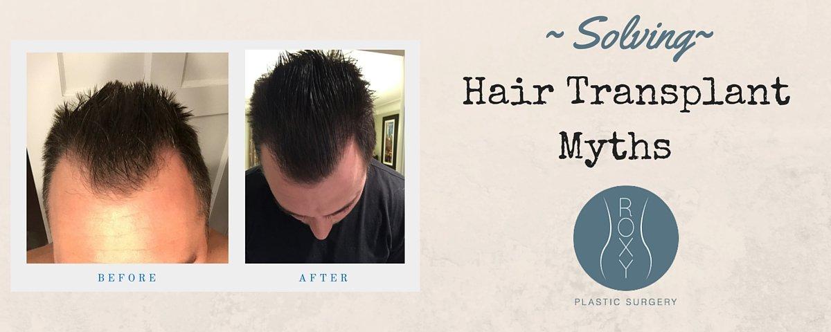 ROXY Plastic Surgery Hair Transplant Myths Solved Columbus Ohio