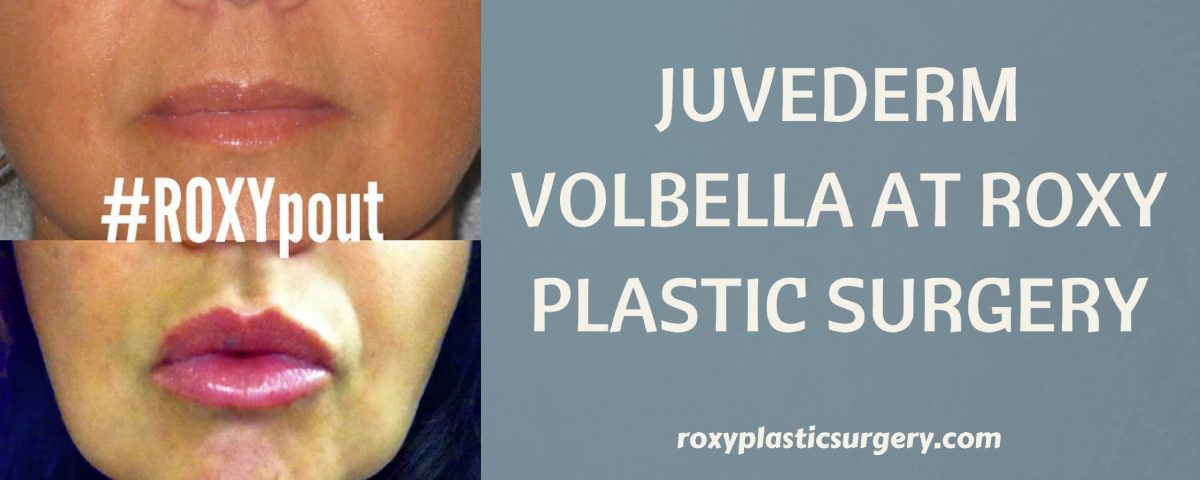 Juvederm Volbella at ROXY Plastic Surgery in Columbus Ohio