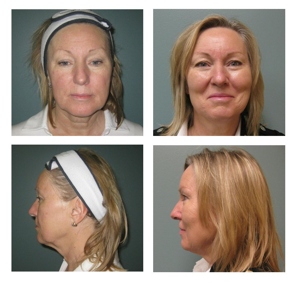 Voluma Before After Liquid Facelift