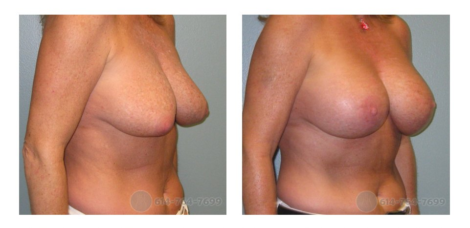 Mommy Makeover Mastopexy Columbus Ohio