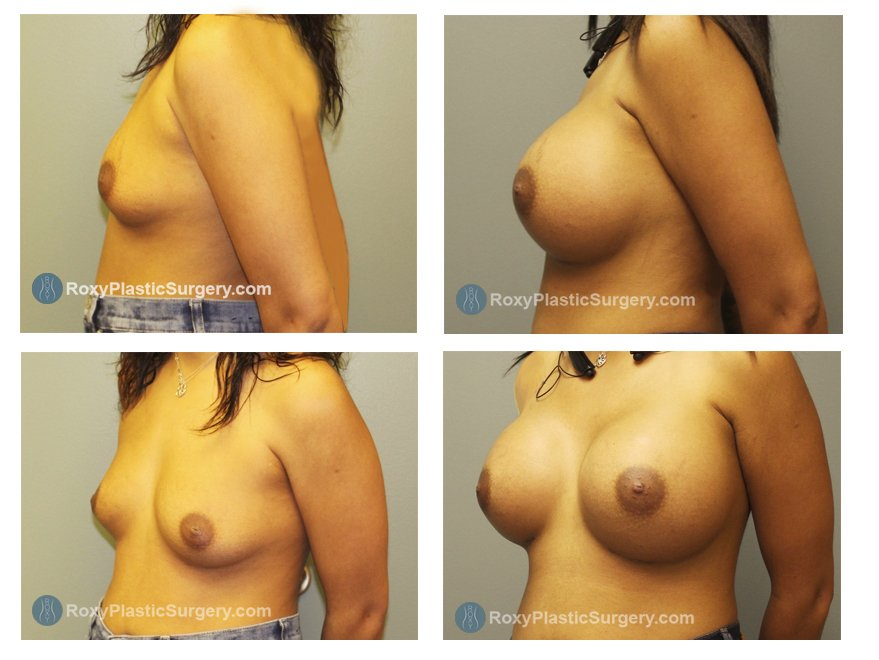 breast implants before and after columbus ohio