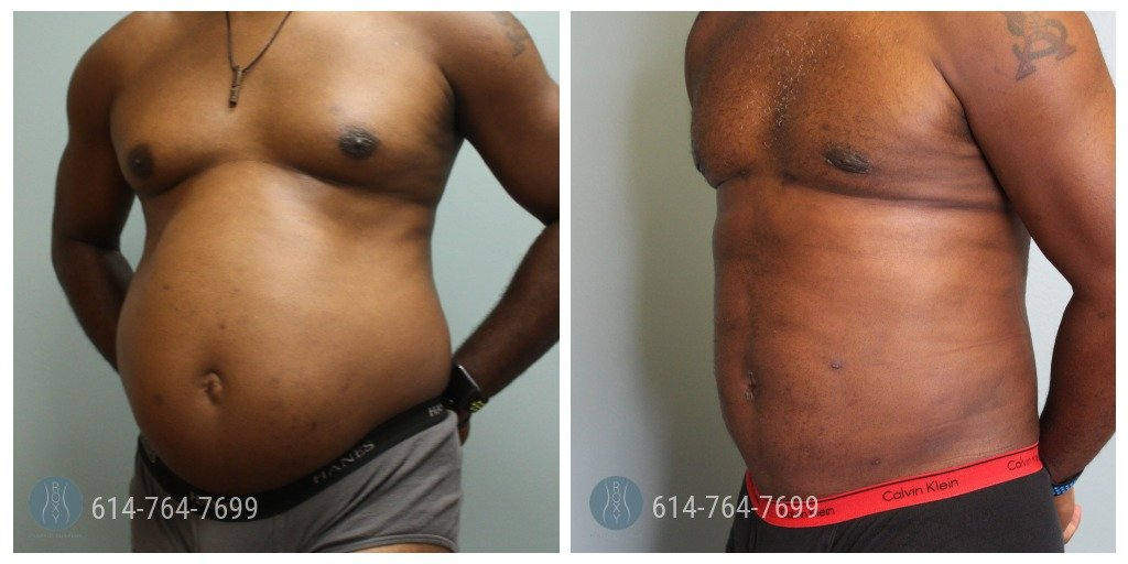 Male Liposuction in Columbus Ohio