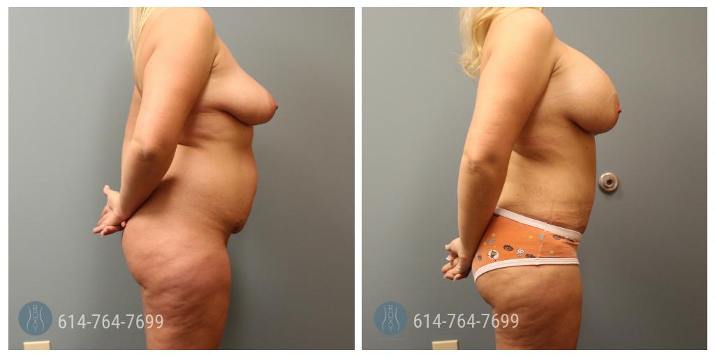 breast augmentation doctors in ohio