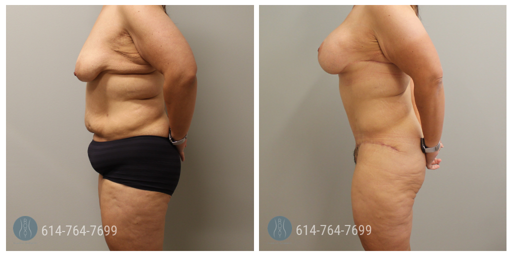 breast augmentation ohio prices