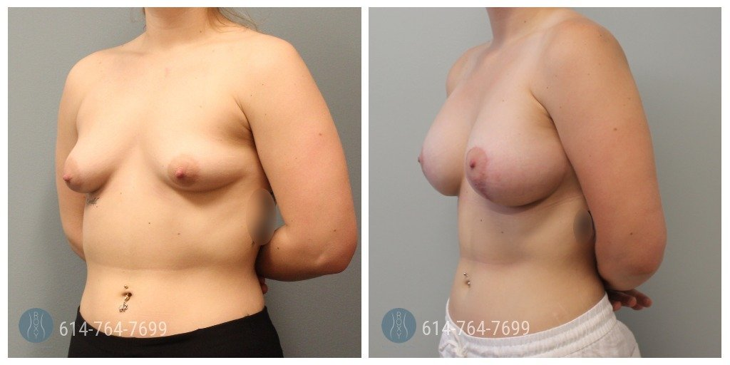 breast lift cincinnati ohio