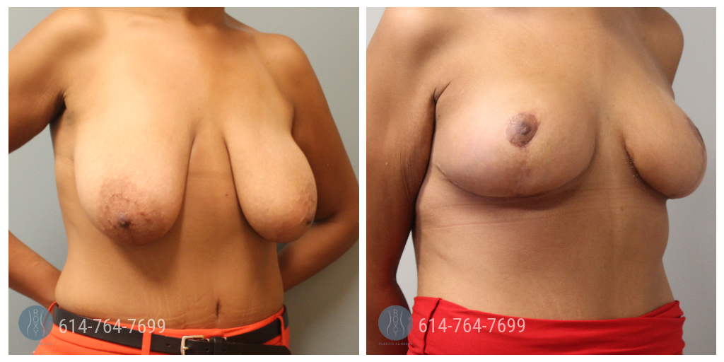 breast lift columbus ohio