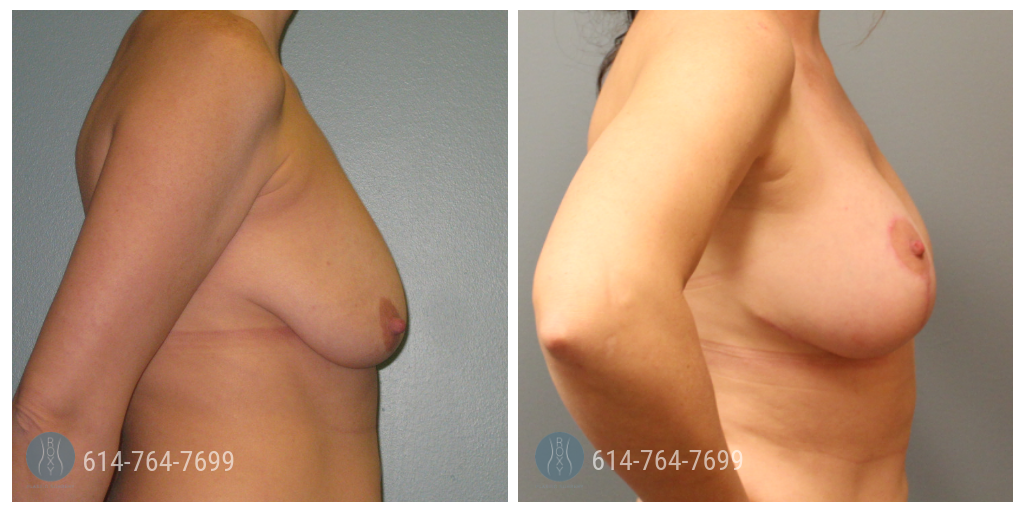 breast lift dayton ohio