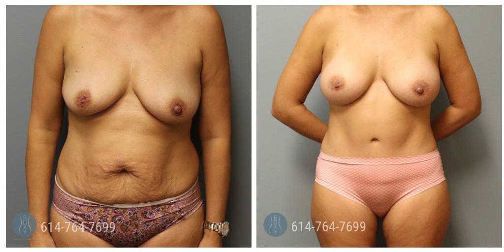 liposuction oh