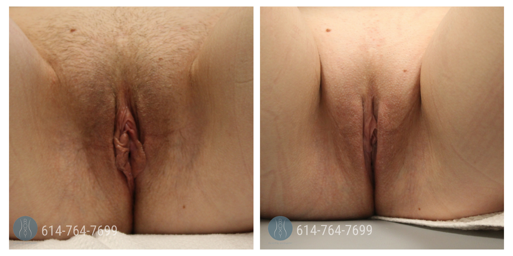 Labiaplasty-Mommy-Makeover