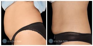 Emsculpt stomach Dr. Roxanne Grawe