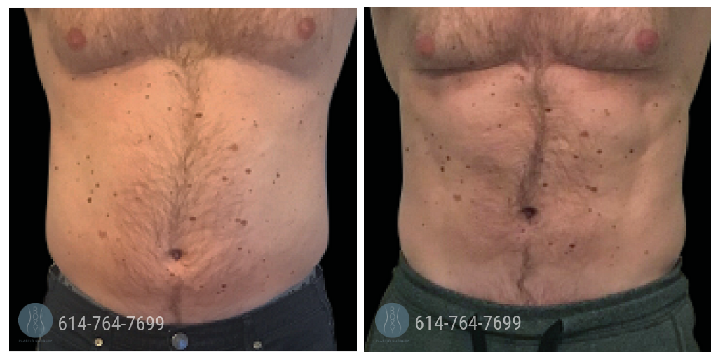 Emsculpt at ROXY Plastic Surgery before and after