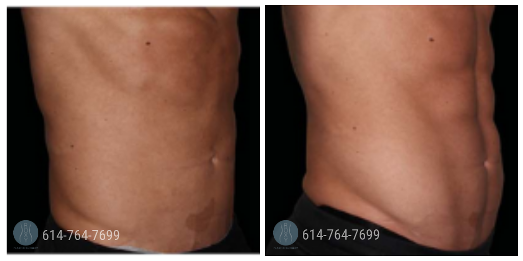 Emsculpt stomach