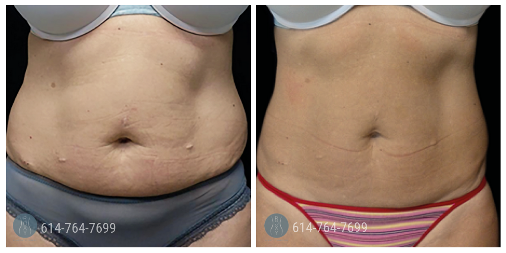 ROXY Plastic Surgery Non-invasive procedures