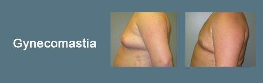 roxy gynecomastia