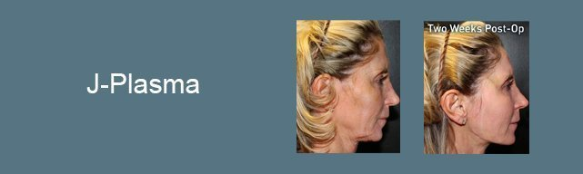 j-plasma roxy plastic surgery ohio