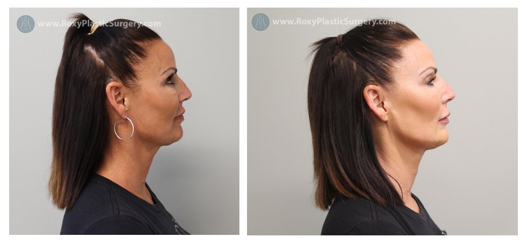 jaw contouring before after - roxy plastic surgery