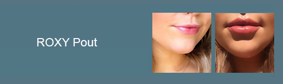 Jaw Contouring Gallery